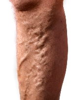 Varicose Veins and Massage Contraindications